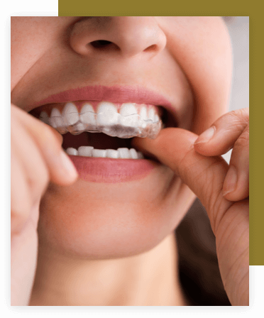 Woman pitting in her Invisalign mouthpiece