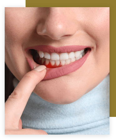 woman pulling her bottom lip down to show gum disease