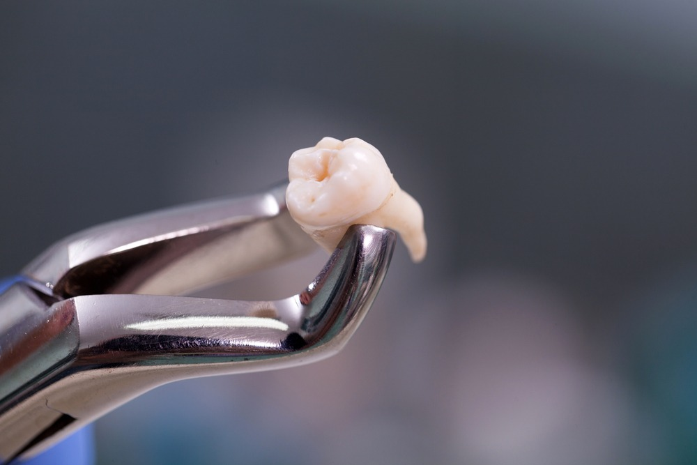tooth extracted with dental tool